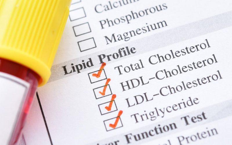 Inilah 4 Cara Mengatasi Kolesterol dan Trigliserida